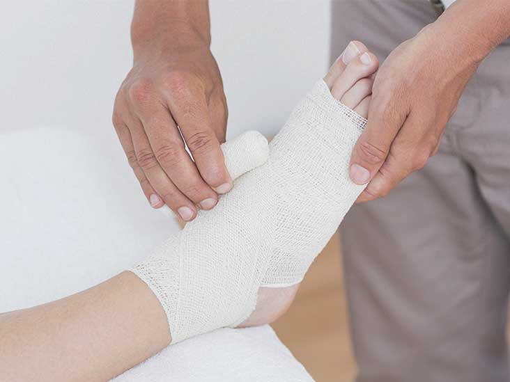 stress fracture, symptoms and treatment - Up and running podiatry