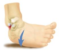 Ankel sprain image